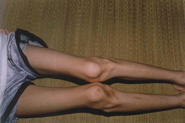 宋旭2001年6月从白庙劳教所出来后所拍的照片。(明慧网)<br /><figcaption class=