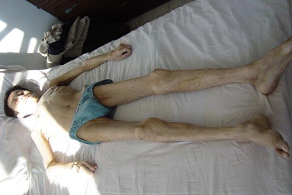 今年7月23日奄奄一息的张忠被父亲接回家,原本140多斤体重的小伙子只剩下一副枯骨架。(明慧网) <br /><figcaption class=