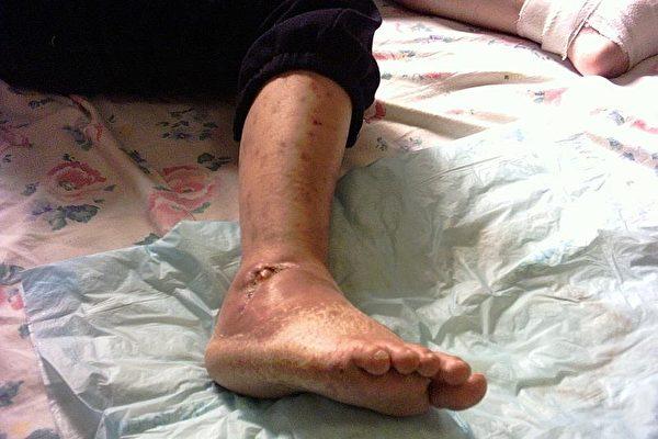 8月14日拍攝的大衛受槍擊的右腳(大紀元記者李慧)