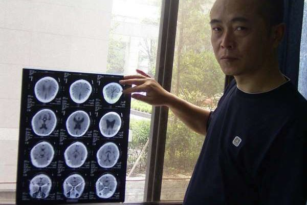 初步体检:显示脑积水(博训网)