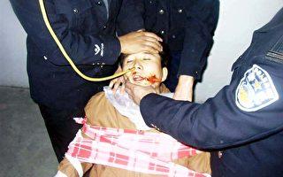 南京女子監獄野蠻灌食 退休女工多器官衰竭