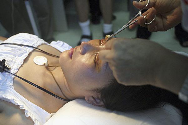 一名女子在北京的一間診所中進行整容手術期間。(Photo by Iko Lee/Getty Images)