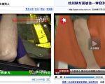 左图为浙江电视台6频道《浙江民生》栏目中播出的事故现场胡斌,其右手臂上一道很长的疤痕;右图为出庭受审的胡斌,其右手臂上去没有疤痕。(大纪元资料图片)