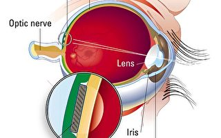 护眼明目并非得耗费大量金钱或时间才能有好效果。(Courtesy of Optobionics/Getty Images)