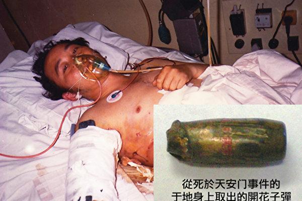 于地去世後,醫生從他右臂取出的子彈頭。(圖/許力平提供)