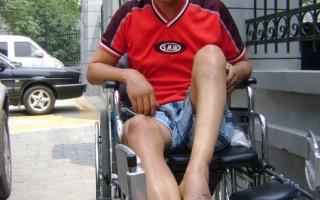 陕西农民反强拆 被砍断脚趾打断腿