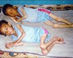 受饥饿折磨的朝鲜儿童。(AFP ImageForum)