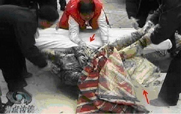 """图8""""伤员""""右腿上的""""防火棉""""被撕开了一大块,在火烧后仍表现出了高韧性。"""