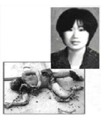 图25 中共《凯风》网上的刘春玲尸体照片