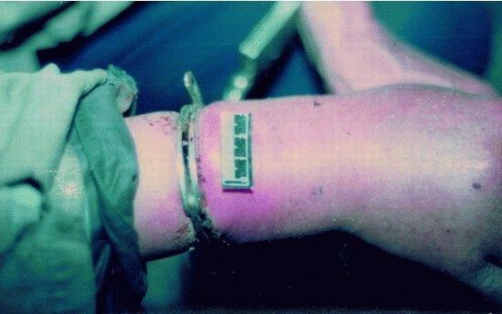 右手肿胀呈紫色(覃道生提供)