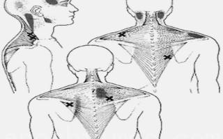 肩頸疼痛的病徵,大都表現為單側或兩側的肩頸僵硬及疼痛,可以找到一個或數個壓痛點,嚴重的更可誘發頭痛。(奇美醫學提供)