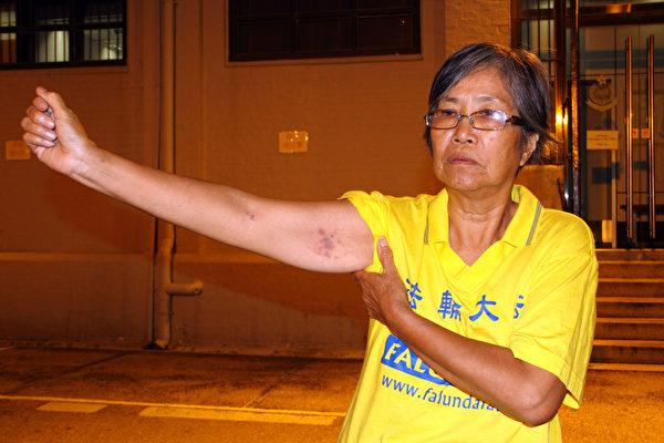 林妹珠遭警员强拉上车,手臂留下瘀痕。(摄影:潘在殊/大纪元)