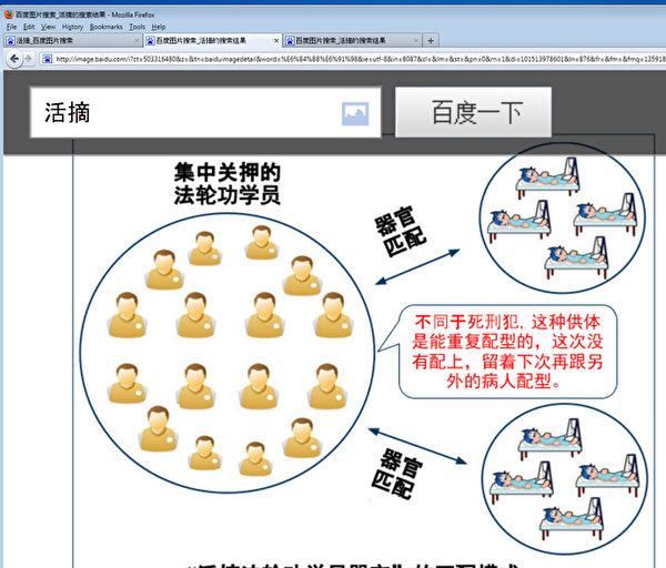 百度上搜索出現大量中共活摘法輪功學員器官真相圖片。(網路截圖)