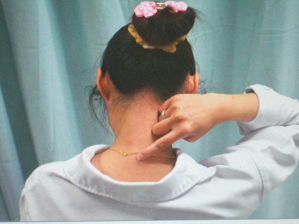 肩外俞︰大椎穴,旁開三寸,左右各一。(高雄醫院中醫部提供)