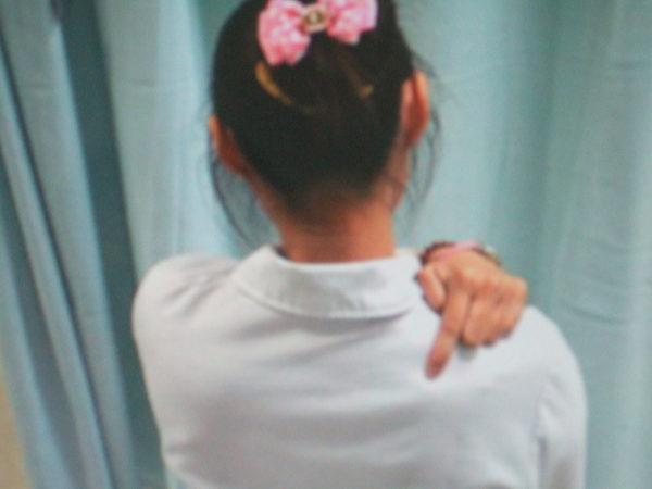 肩井穴︰肩外側緣和大椎穴之中間點,左右各一。(高雄醫院中醫部提供)