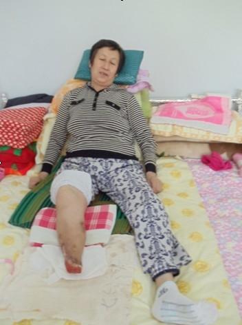 宋慧兰被打毒针迫害致残(右脚焦黑、溃烂、坏死脱落)(慎入)。(图片来源:明慧网)