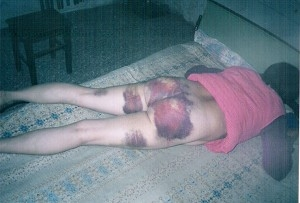 法輪功女學員劉季芝遭河北公安毒打並姦污,臀部、腿部多處外傷 。(明慧網)