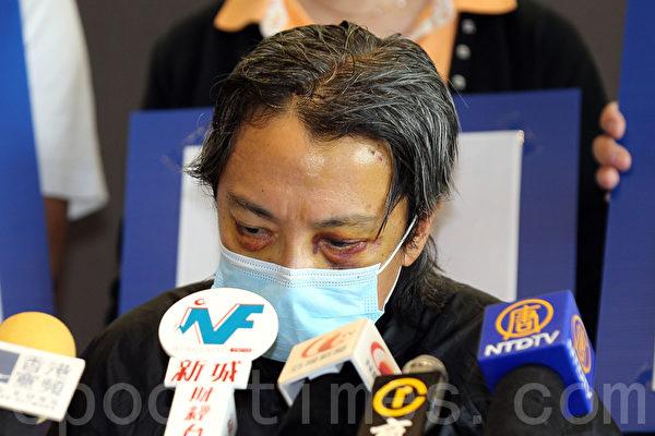 被青關會暴徒襲擊後雙目仍然瘀黑的陳先生脫下帽子,可以看到頭部明顯的傷痕。(攝影:潘在殊/大紀元)