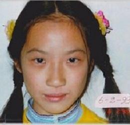 图2:女儿照片摄于一九九九年六月,皮肤奇迹般正常了。(图:明慧网)