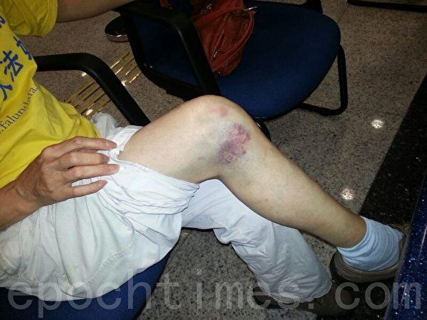 張素琪被青關會群毆至左腿瘀青腫脹。圖為6月1日被打第二天警署報案時拍攝。(大紀元資料庫)