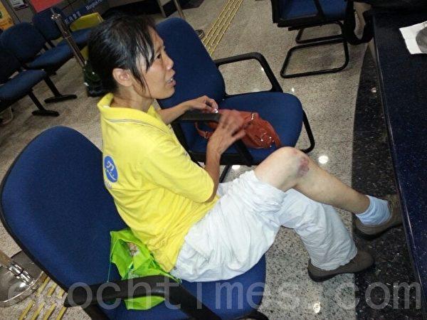 張素琪被青關會群毆至腿關節腫脹。圖為6月1日被打第二天警署報案時拍攝。(大紀元資料庫)