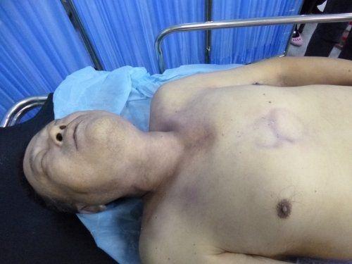 今年10月24日早晨,上海遭强拆访民沈勇在被黑保安和警察拳打脚踢,带手铐强行带走的两个小时后死亡。(知情者提供)