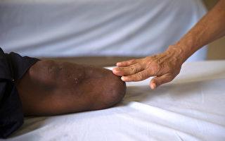 【小宇宙传说】截肢后还会痛?98%病人有幻肢感觉