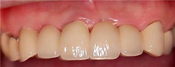 患者植牙後。(圖片由好牙醫提供)