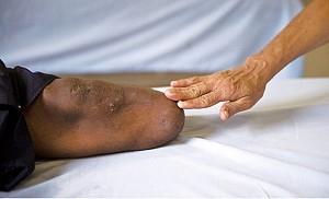 超過八成截肢患者有「幻肢痛」感覺。「幻肢」實際上就是這個空間的分子結構被手術截掉了,可是另外空間的肢體還存在著。(AFP)