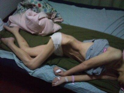 辽宁省沈阳市和平区法轮功学员今年53岁的刘志,在被关押沈阳第一看守所和辽宁省女子监狱期间,被中共的警察实施了系统的药物迫害,她从一个体重150多斤的身心健康的妇女,变成了皮包骨完全不能活动的体重只有70多斤脱去人形的人。(知情者提供)