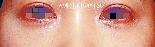 下眼袋脂肪去除術後。(圖片由趙恩辛整型外科提供)