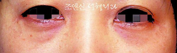 下眼袋脂肪去除術前。(圖片由趙恩辛整型外科提供)