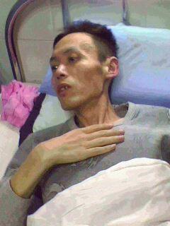 被迫害後的李上榮在醫院,檢查結果顯示肺部已經爛沒了。(明慧網)
