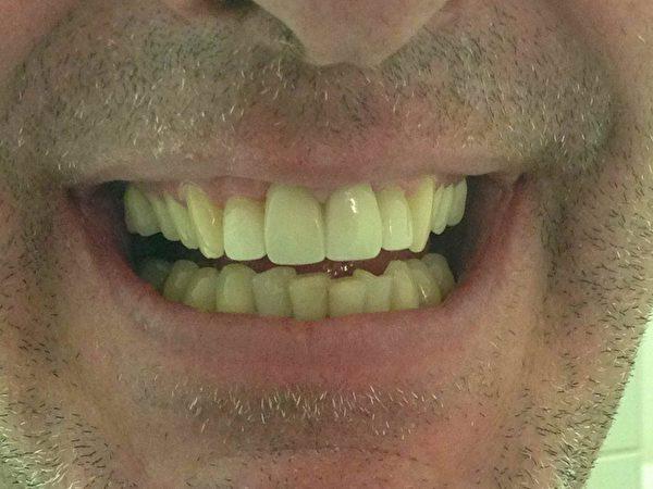 牙齒美容案例:40歲建築公司老闆,以前不敢笑(左),經徐雷醫生做了牙齒美容手術後現在可以開心的笑了(右)。(圖由徐雷牙醫提供)