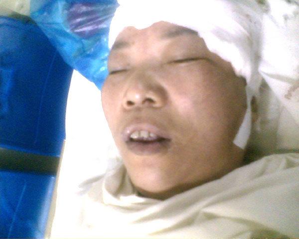 陳玉梅被警察打成重傷後在醫院的照片(明慧網)