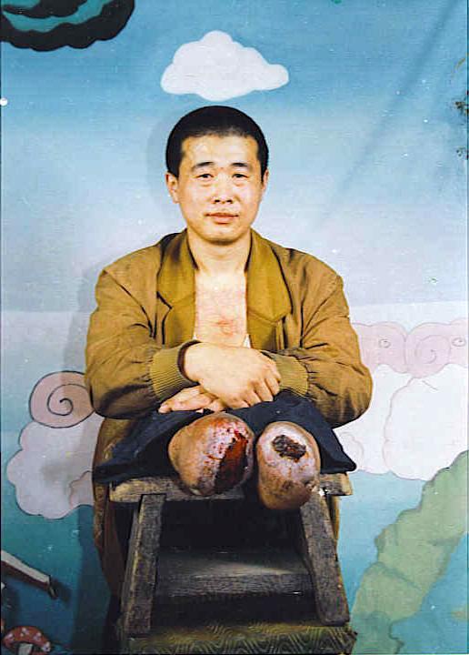 法輪功學員王新春被迫害致殘,雙腳脫落。(明慧網)