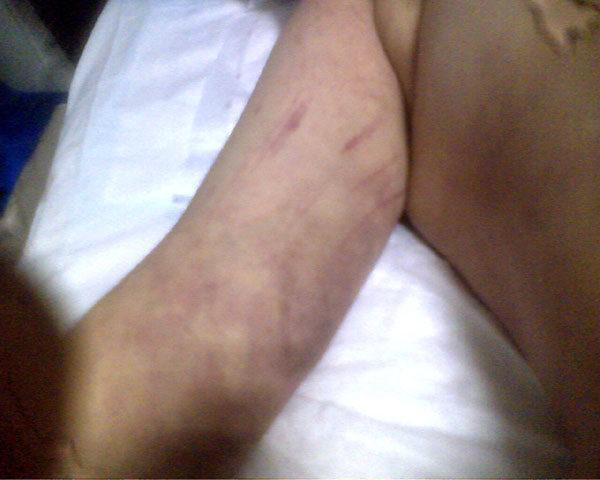 身體上被毆打的傷痕(明慧網)