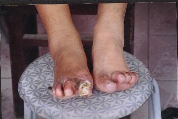 徐法月被截肢的腳趾(明慧網)
