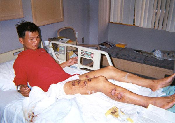 覃永潔被中國警察用燒紅的鐵條烙傷多處(明慧網)
