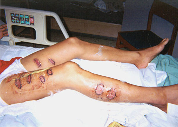 覃永洁被中国警察用烧红的铁条烙伤多处(明慧网)