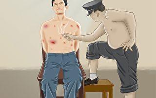 中共酷刑:烟头烧烫,下流阴毒、残忍至极。(明慧网)