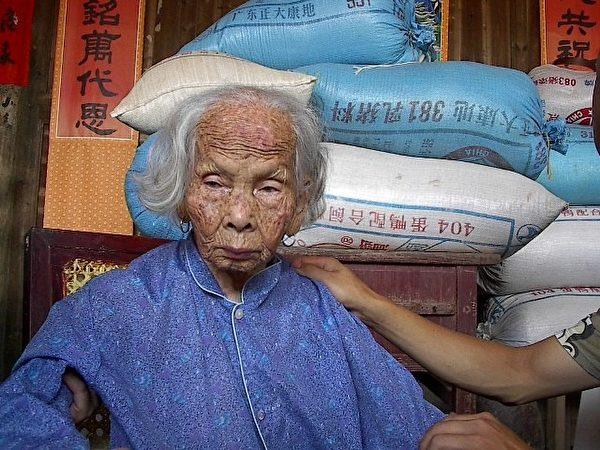 图:我的姑妈谢淑庄。这是2002年时我返乡时见到的淑庄姑妈,已九十高龄的她满面风霜,显然是辛劳了一辈子。姑妈年幼时,家中为筹措我父亲去厦门求学的路费,被卖到邻村王家为童养媳。见到她时,姑妈已患老人痴呆症数年,不能言语。这可能是她老人家的最后一张照片,因为数周后姑妈就过世了。(作者提供)