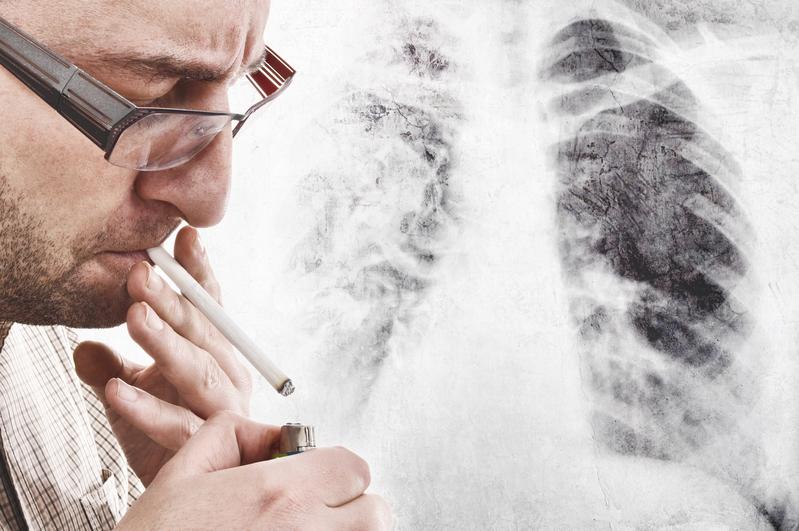 喫煙が健康に与える影響(Fotolia)