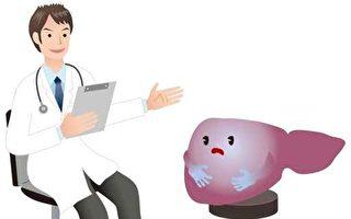國衛院最新研究 這3個症狀也易引發肝癌