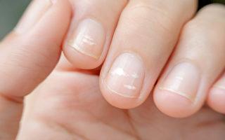 指甲出現白點 可能是疾病前兆