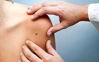 皮肤出现这些症状 或是癌症前兆