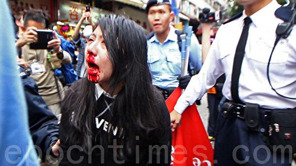 靠近元朗大桥街市,有一名长发女示威者口鼻流血受伤,由女警带走。(蔡雯文/大纪元)