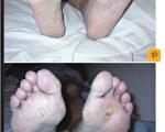 一位糖尿病患的腳底潰傷,經過BEMER的幫助,很快在幾週後就癒合。(Chitvan提供)