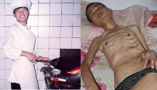 鄉親們公認的好青年徐大為被瀋陽東陵監獄迫害前後的照片對比。(明慧網)