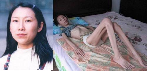 河北省法輪功學員趙燁被迫害前後的照片對比。(明慧網)